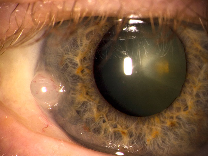 Image of Superficial Corneal Growth