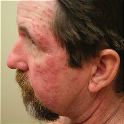 Painful, umbilicated vesicles on the patient's face and neck.